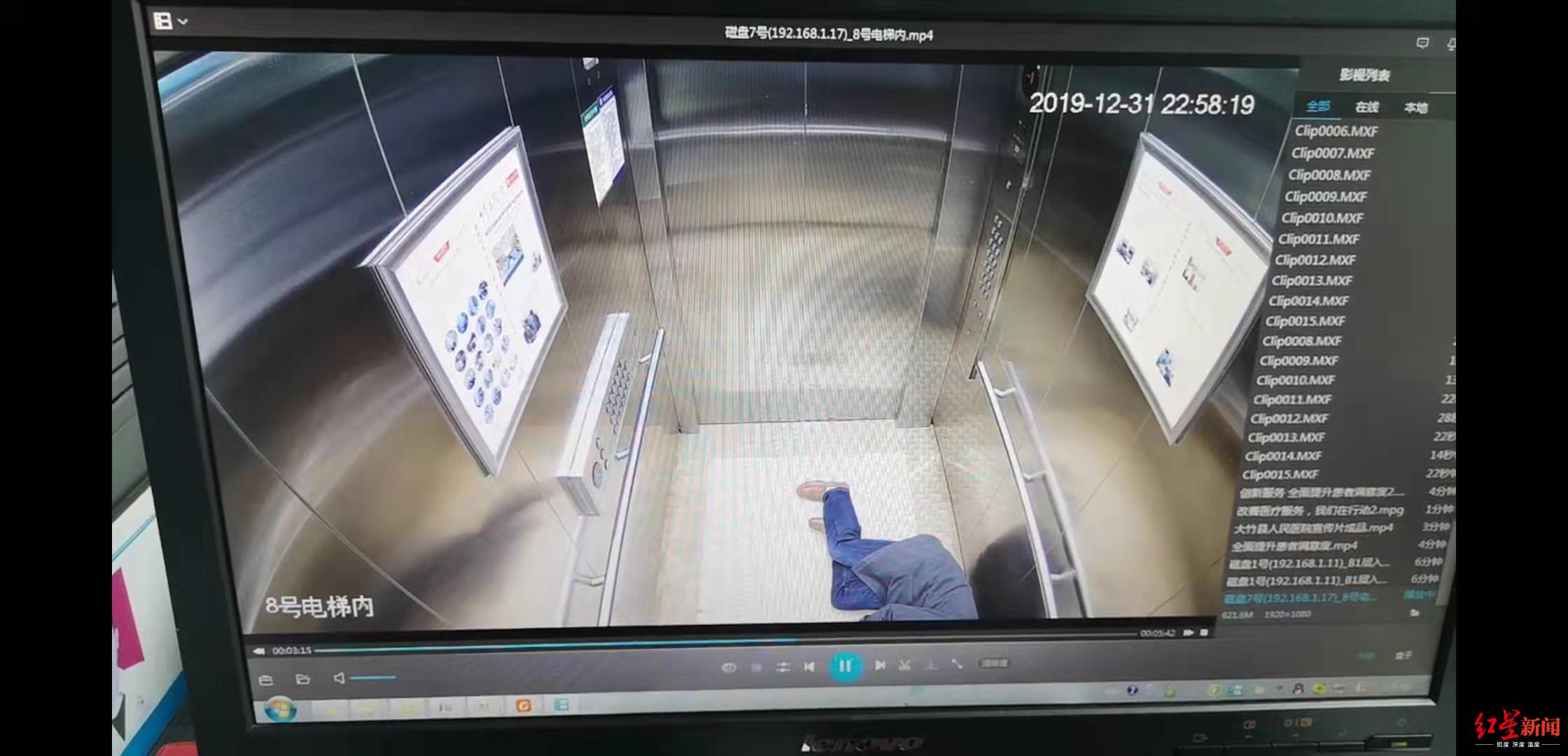大竹县一医生被多台手术累垮 站着睡着摔倒磕断两颗门牙