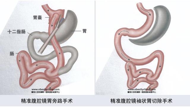 切胃减肥手术有什么副作用?饮食上需要注意什么?