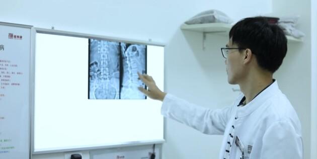 龙脊康温俊杰主任:脊柱侧弯要做什么检查来确诊?